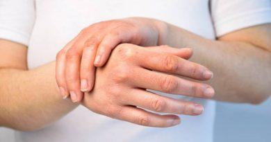 Una entidad porteña difunde la esclerodermia, una enfermedad poco frecuente